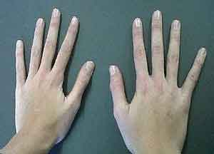 length thumb