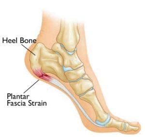 heel-pain1