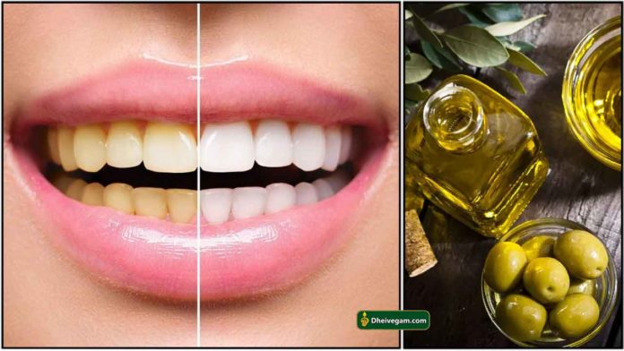 tooth-tips