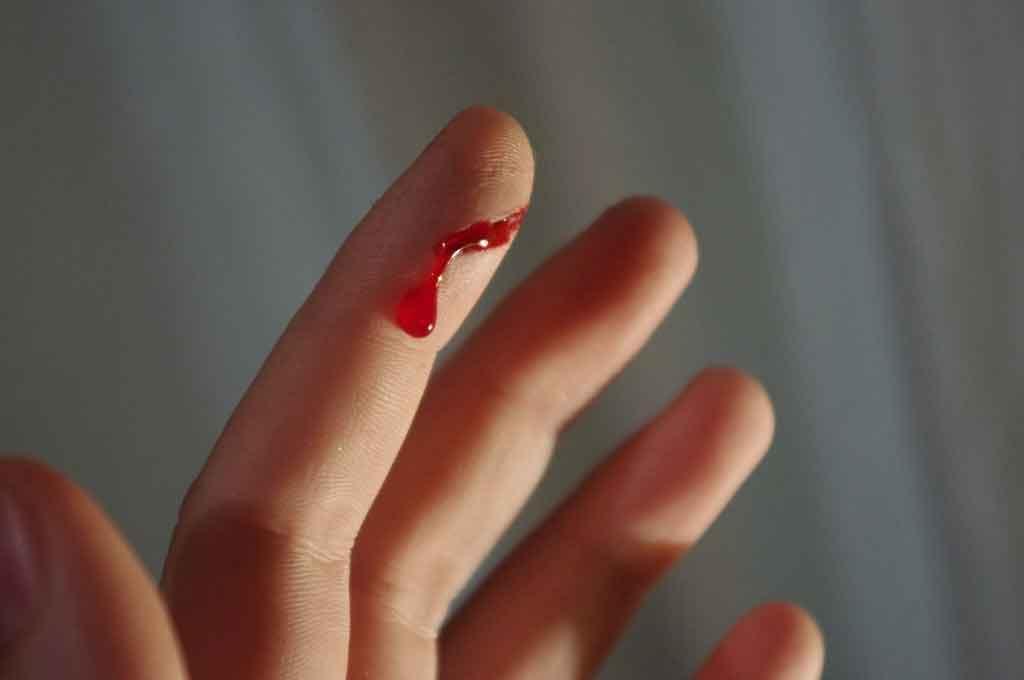 bleeding-blood