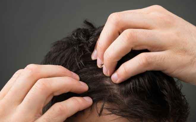 men-hair