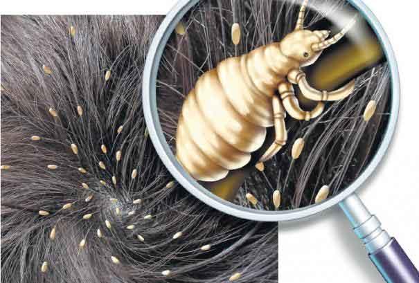 pen-lice
