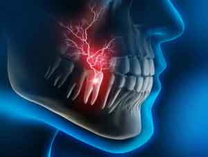 teeth-pain1