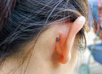 mole-on-ear