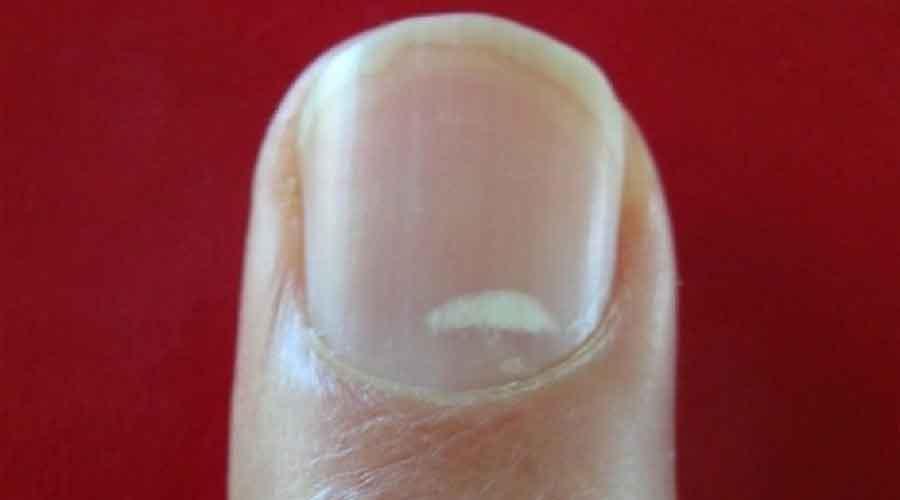 nail-white-dot